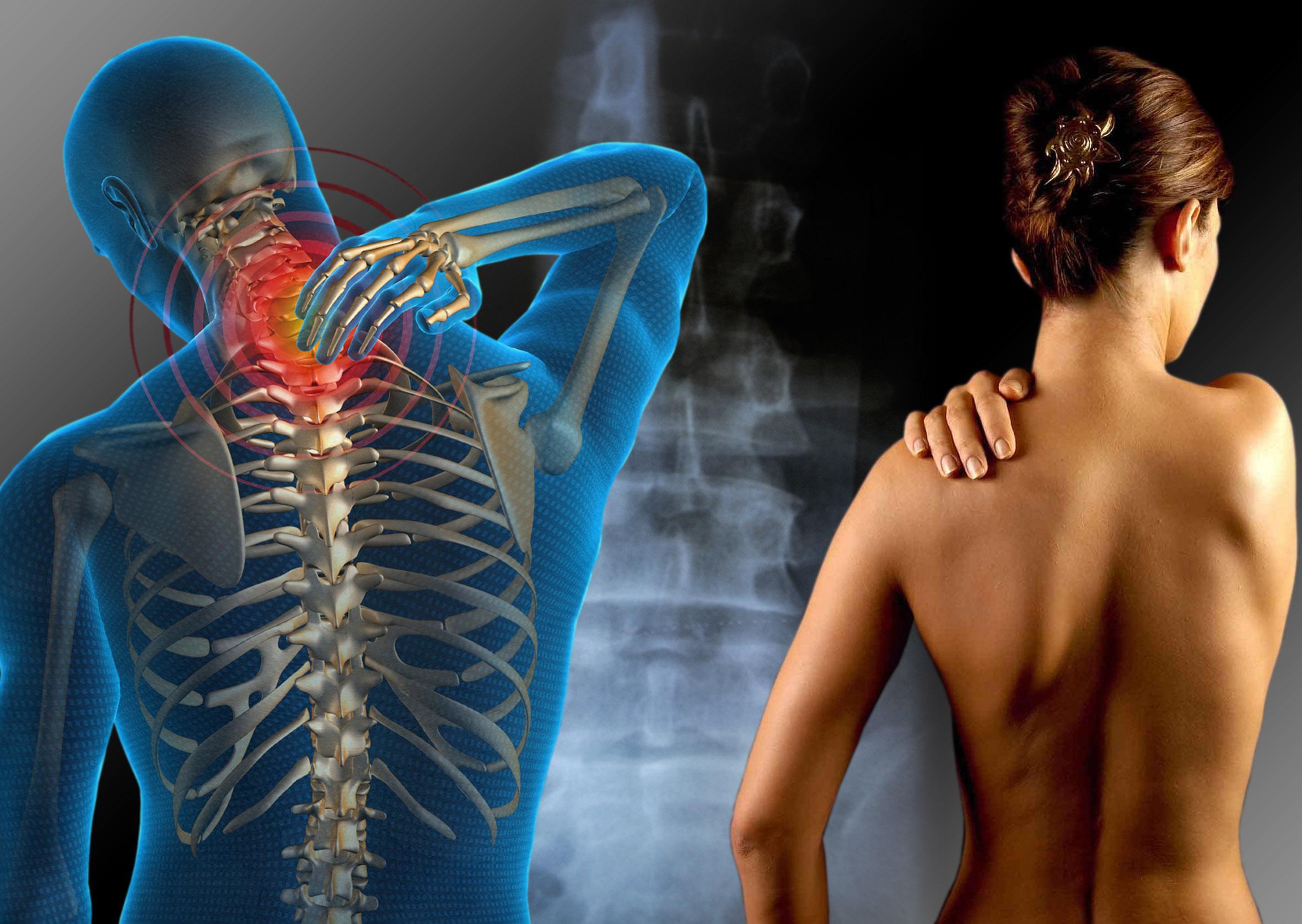 Tratamiento Para La Fibromialgia