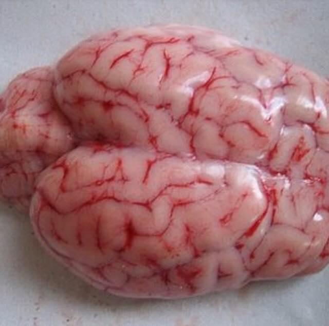 Desarrollo del Cerebro Fetal